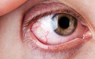 Болят глазные яблоки — какая причина, все о гомеопатии