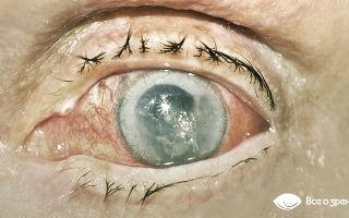 Болят глаза при температуре — все о гомеопатии