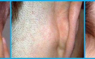 Что может болеть за ухом — причины возникновения болевых ощущений, все о гомеопатии