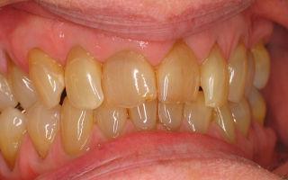 Желтые зубы — разберем все причины, все о гомеопатии