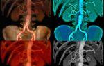 Аневризма грудной аорты (лат. aneurysma aortae) — расширение участка аорты, все о гомеопатии