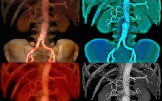 Аневризма грудной аорты — все о гомеопатии