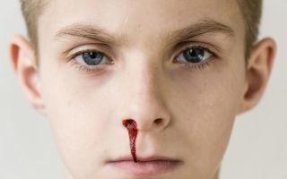 Запах крови в носу — причины кровотечения, все о гомеопатии