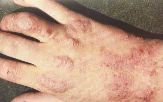 Нейродермит (атопический дерматит) — рецидивирующее заболевание, все о гомеопатии