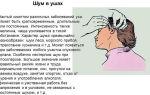 Почему в ушах возникает шум и как его лечить гомеопатией? — все о гомеопатии