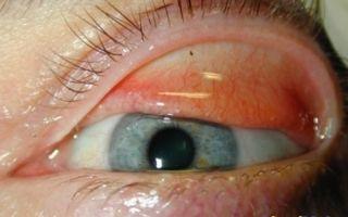 Чешутся глаза (зуд в глазах) — что делать в этой ситуации, все о гомеопатии