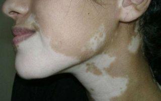 Причины появления белых пятен на лице и их лечение — все о гомеопатии