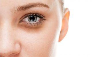 Темные круги под глазами — убираем усталый внешний вид, все о гомеопатии