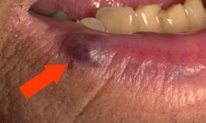 Синяя точка на губе — все о гомеопатии