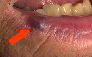 Синяя точка на губе — «венозное озерцо», все о гомеопатии
