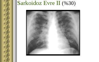 Саркоидоз (болезнь Бенье) — аутоиммунное заболевание, все о гомеопатии