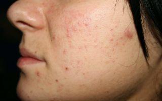 Почему зудит лицо — как от него избавиться и снять симптомы, все о гомеопатии