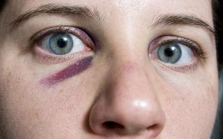 Синяки под глазами — почему появляются и как их убрать, все о гомеопатии