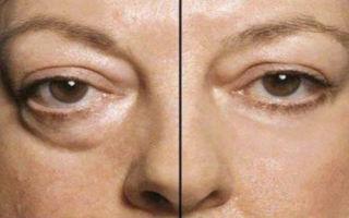 Отеки под глазами — как правильно бороться с этим явлением, все о гомеопатии