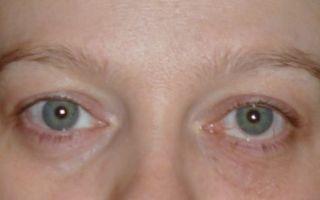Двоится в глазах — все о гомеопатии