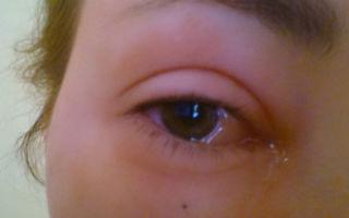 Глаза чешутся и опухают — все о гомеопатии