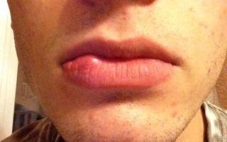 Шишка на губе — как вовремя предотвратить болезнь, все о гомеопатии