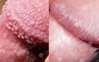 Сыпь на половых губах (белые и красные пятна) — причины и лечение заболеваний, все о гомеопатии