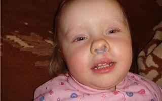 Коричневые сопли из носа (взрослые) — почему они такого цвета, все о гомеопатии