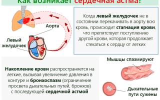 Сердечная астма — причины развития и профилактика приступов, все о гомеопатии