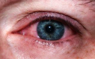Красные глаза (по утрам) — какие причины, все о гомеопатии