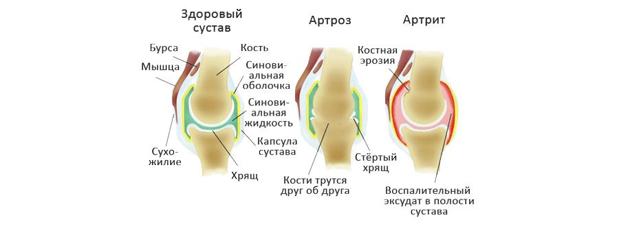 Лечение ревматоидного артрита гомеопатическими средствами -