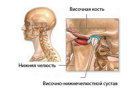 Гомеопатическими средствами лечение артрита -