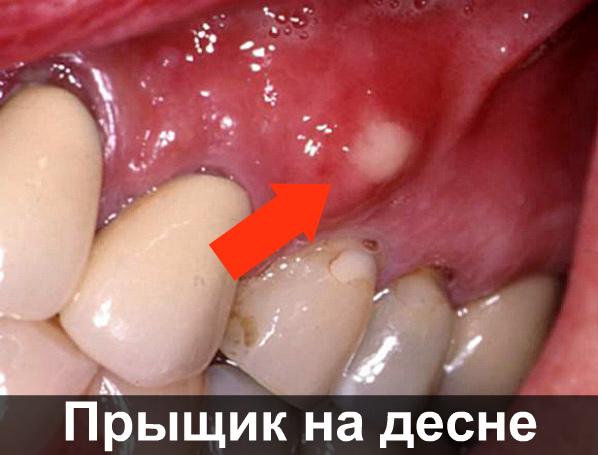 Болит десна в конце нижней челюсти: причины и методы лечения. Болит десна: что делать и как лечить боль — Айболит