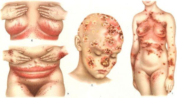 Лечение молочницы гомеопатическими средствами. Гомеопатия от кандидоза кишечника