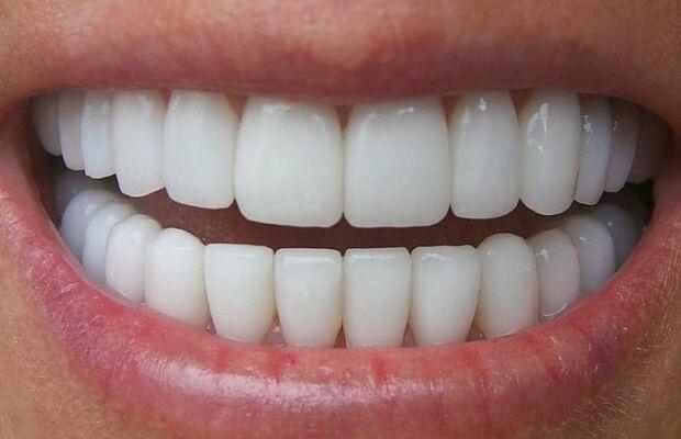 Кариес на молочных зубах гомеопатия