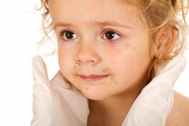 Лечение аллергии вокруг рта